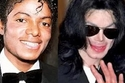 مايكل جاكسون Michael Jackson قبل وبعد تجميل أنفه