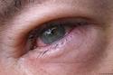 تطور حساسية العين قد يصيبك بما يُعرف باسم متلازمة العين الجافة