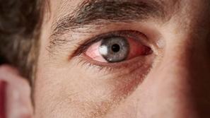 انتبه: مشاكل العين مؤشر لأمراض خطيرة قد تصيبك