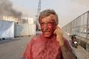 أثار الانفجار على وجه أحد المواطنين في لبنان