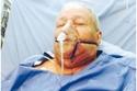 مبارك عبد الكريم على أجهزة التنفس