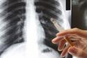 تدخين هو أهم وأبرز أسباب تطور وانتشار مرض سرطان الرئة،