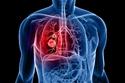 كيف تحمي نفسك من سرطان الرئة؟