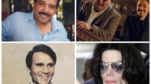 صور: ضحايا الأخطاء الطبية من المشاهير.. أبرزهم دخلت في غيبوبة عام كامل