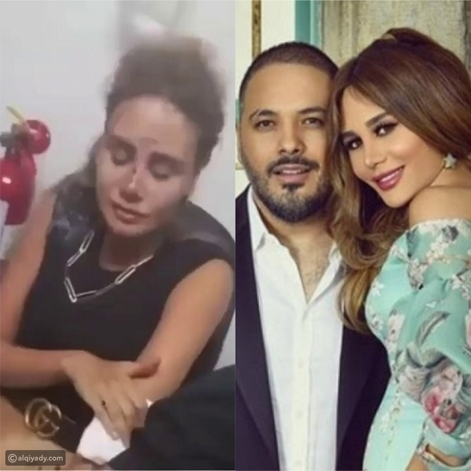 انفجار بيروت: مشاهير تدمرت منازلهم وآخرون كادوا يفقدون حياتهم