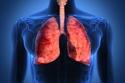 احذر: هذه العلامات قد تكون مؤشرًا لإصابتك بسرطان الرئة