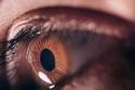 شاهد: إصابة امرأة بـ 500 ثقب في قرنية عينها بسبب هاتفها المحمول