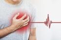هذه الأعراض قد تكون مؤشرًا لإصابتك بنوبة قلبية
