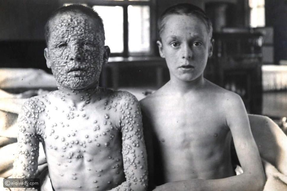 إدوارد جينر وتاريخ الجدري والتطعيم