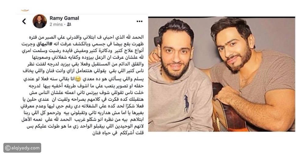 """صورة:هكذا ساند المطرب تامر حسني زميله رامي جمال بعد إصابته بـ """"البهاق"""""""