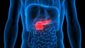 علامات خفية قد تشير إلى الإصابة بسرطان البنكرياس