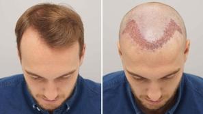زراعة الشعر للرجال: كل ما تود معرفته بالتفصيل