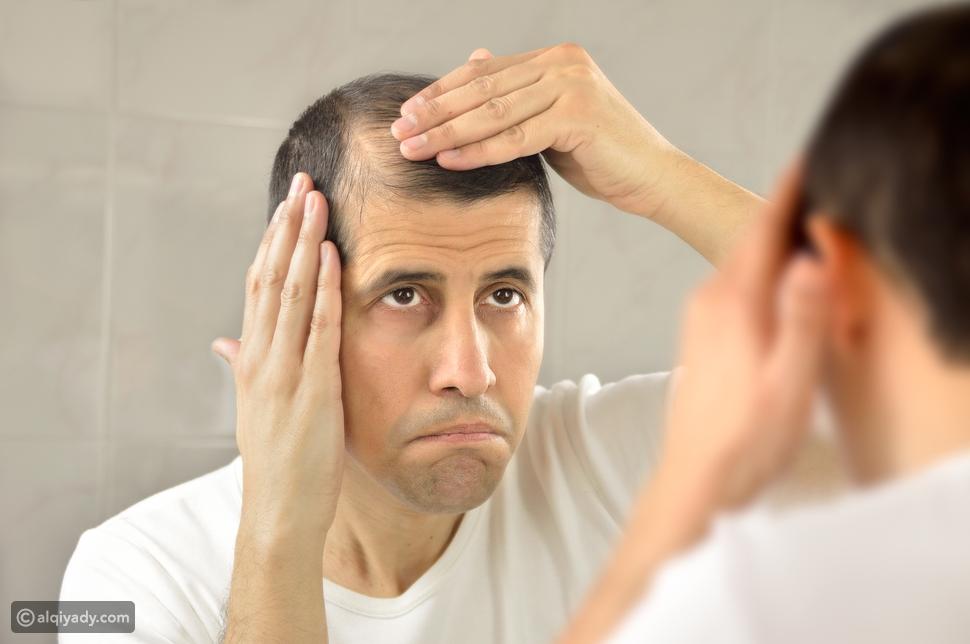 تصالح مع شعرك: كيف تحارب الصلع بخطوات بسيطة؟