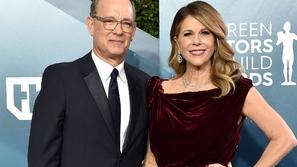 مرض خطير يضاعف آثار كورونا القاتلة على توم هانكس Tom Hanks