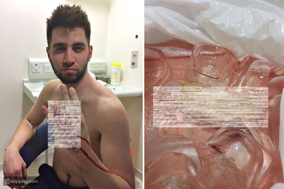صور لاعب كرة قدم يفقد إصبعه خلال إحدى المباريات.. والسبب؟