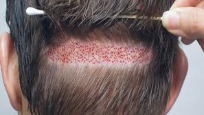 كل ما تحتاج معرفته عن عمليات زراعة الشعر.. تعرف على التفاصيل