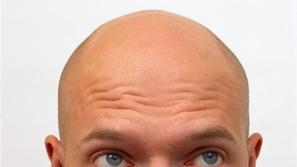 علاج جديد يفتح باب الأمل لمن يعانون من الصلع وتساقط الشعر