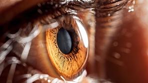 فيديو: علماء يطورون روبوت لإجراء جراحات العيون المعقدة