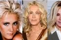 هل تحاول إقناع زوجتك بعمليات التجميل؟ شاهد صور أفشل 20 عملية تجميل في التاريخ وستغير رأيك!