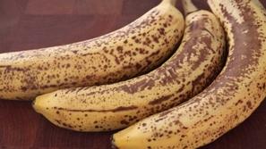 فوائد تسمع عنها لأول مرة للبقع البنية في الموز