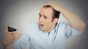 5 أطعمة تحميك من تساقط الشعر.. تعرف عليها