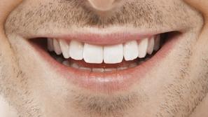 كيف تحصل على أسنان قوية في 5 خطوات فقط؟ إليك الإجابة